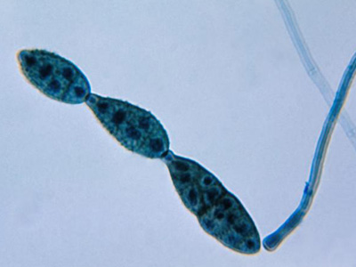 chain of conidia of a alternaria sp